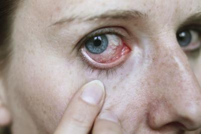 Quali sono le cause degli occhi gonfi mattina?
