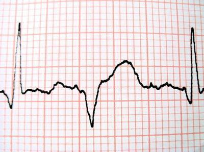 Una frequenza cardiaca durante un attacco di cuore