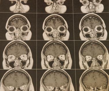 Elenco dei nervi cranici valutati durante una valutazione neurologica