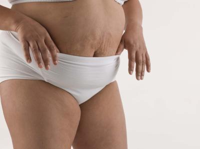 Come rimanere incinta se sei grasso