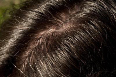 Vaselina può essere utilizzato per cuoio capelluto secco?