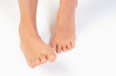 Quali sono i sintomi del fungo sotto l'unghia del piede?