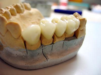 Le complicanze a lungo termine di un palato schisi labiale