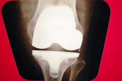 Quali sono le cause di dolore al ginocchio nei bambini?