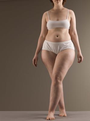 Trattamento Dermosonic Cellulite