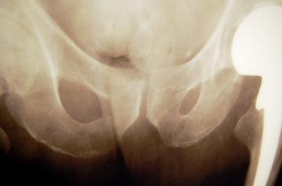 Sintomi comuni per una sostituzione dell'anca