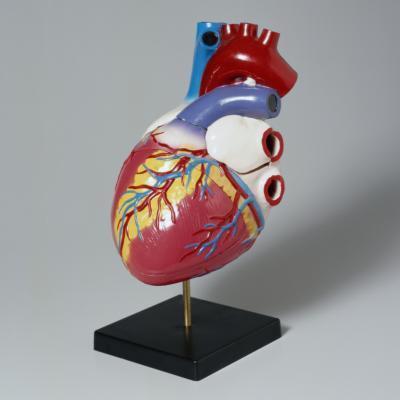 Segni di morte con insufficienza cardiaca congestizia