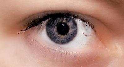 Può un fegato grasso causare gli occhi gialli?