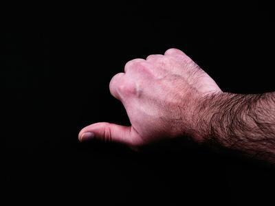 Quali sono i trattamenti per la malattia degenerativa delle articolazioni del pollice?