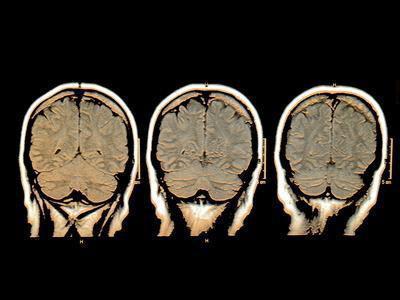 Supplementi di memoria funzionano?
