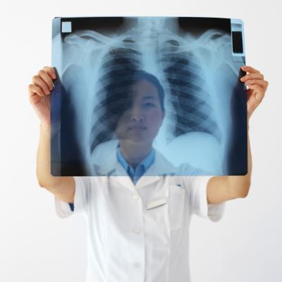 Perché la frequenza respiratoria resta elevata dopo l'esercizio?