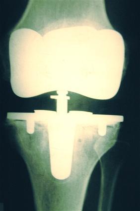 Esercizi di riscaldamento del ginocchio