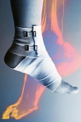 Tipi di frattura della caviglia
