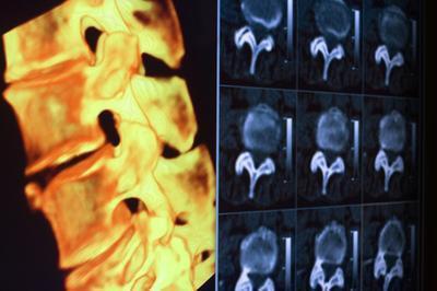 Elenco dei nervi spinali