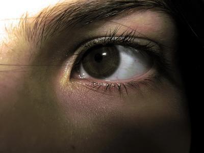 Sintomi di danno del nervo dell'occhio