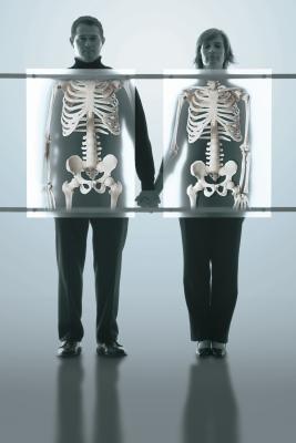Studi di idrossiapatite microcristallina per l'osteoporosi