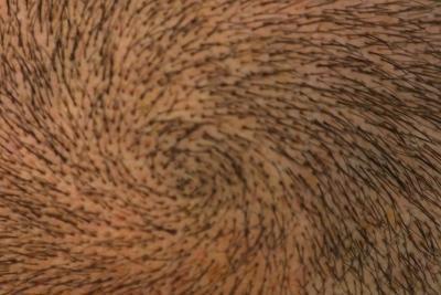 Come crescere i capelli indietro dopo tigna