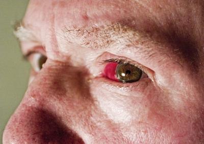 Cause dei vasi sanguigni dell'occhio rotto