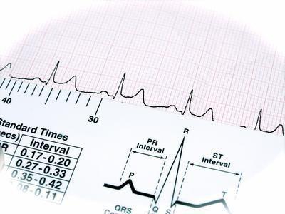Farmaci per il trattamento di una frequenza cardiaca rapida