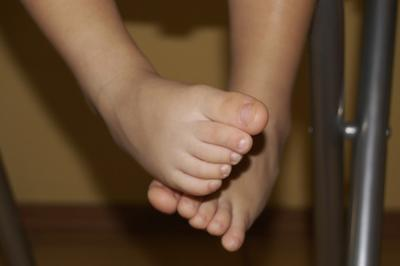 Malattie che causano ecchimosi nei bambini