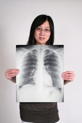 Cause di cicatrici fibrotiche del polmone