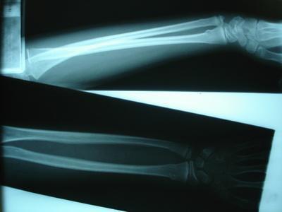 Come guarire da polso & dolore alla spalla