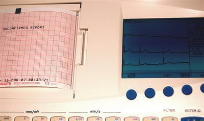 Complicazioni cardiache della malattia di Lyme